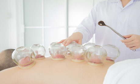 Clinical Cupping Therapist